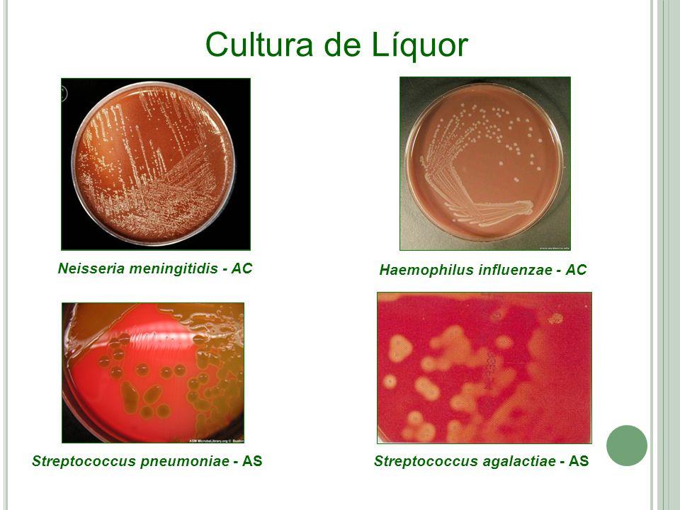 Neisseria meningitidis - AC Haemophilus influenzae - AC Streptococcus pneumoniae - AS Cultura de Líquor Streptococcus agalactiae - AS