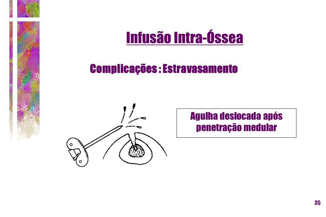 35 Agulha deslocada após penetração medular Complicações : Estravasamento Infusão Intra-Óssea