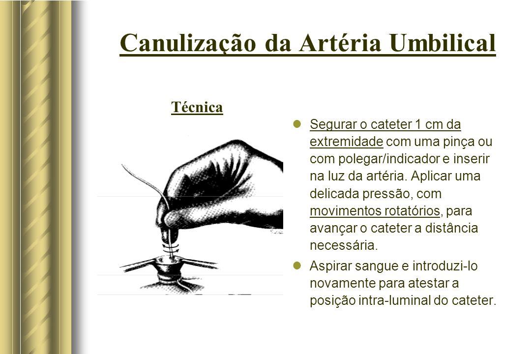 Canulização da Artéria Umbilical Segurar o cateter 1 cm da extremidade com uma pinça ou com polegar/indicador e inserir na luz da artéria. Aplicar uma