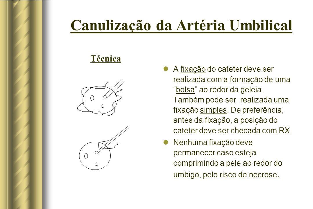 Canulização da Artéria Umbilical A fixação do cateter deve ser realizada com a formação de umabolsa ao redor da geleia. Também pode ser realizada uma