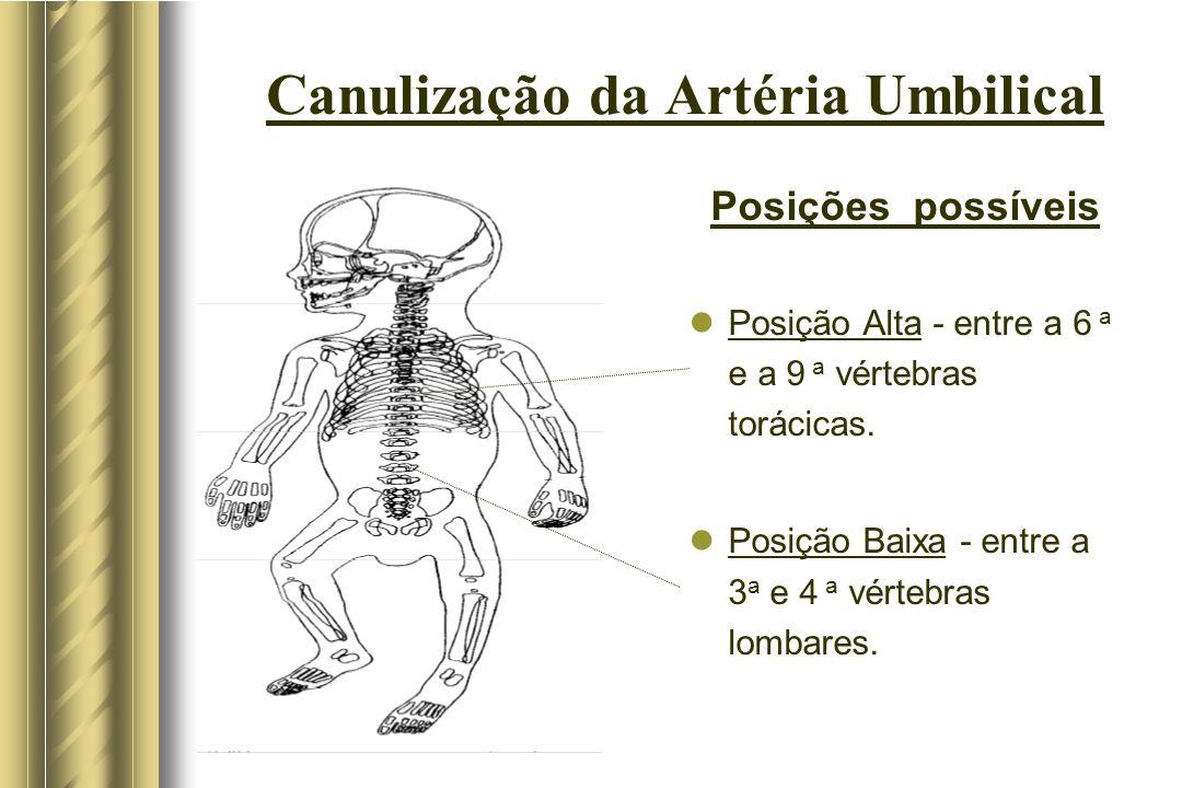 Canulização da Artéria Umbilical Posições possíveis Posição Alta - entre a 6 a e a 9 a vértebras torácicas. Posição Baixa - entre a 3 a e 4 a vértebra