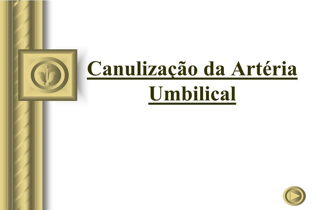 Canulização de Veia Umbilical Técnica A técnica de retirada é a mesma utilizada na artéria.