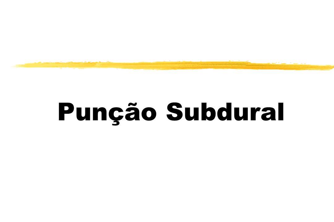 Punção Subdural