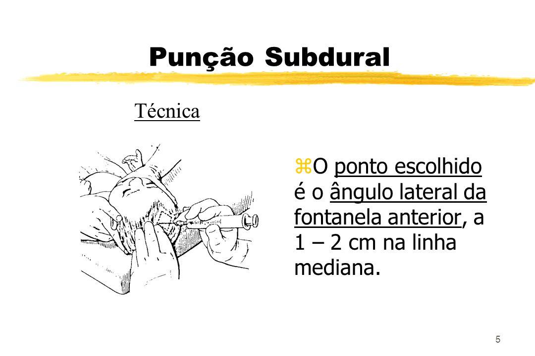 5 Punção Subdural z O ponto escolhido é o ângulo lateral da fontanela anterior, a 1 – 2 cm na linha mediana. Técnica