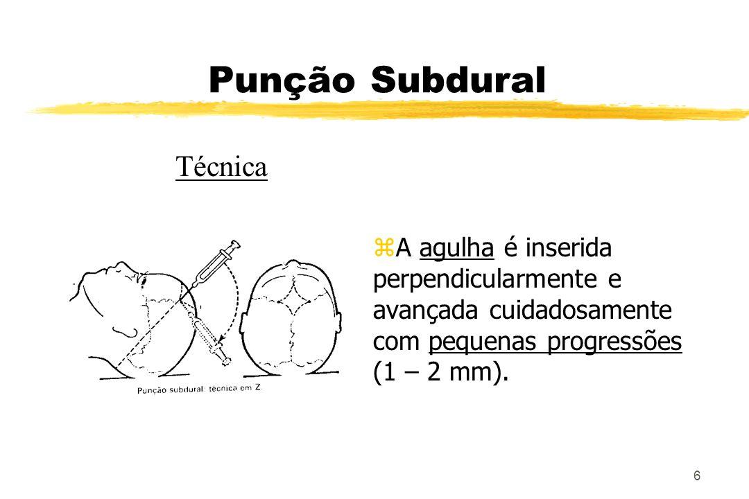 7 Punção Subdural z O operador deve manter controle sobre a agulha permanentemente, utilizando as duas mãos : o polegar e o indicador estabilizam a agulha no couro cabeludo, enquanto a outra mão progride com a manobra.