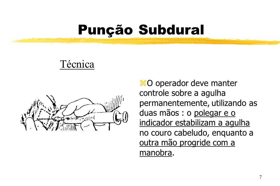 8 Punção Subdural Técnica zA ultrapassagem pela duramater gera uma sensação de um click (ao redor de 0,5 a 1 cm), após o qual o mandril deve ser retirado e verificada a saída de líquor.
