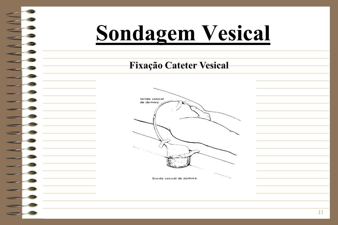 11 Sondagem Vesical Fixação Cateter Vesical