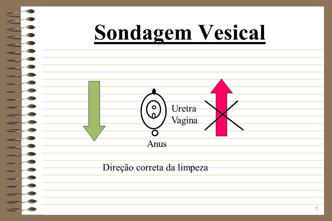 5 Sondagem Vesical Uretra Vagina Anus Direção correta da limpeza
