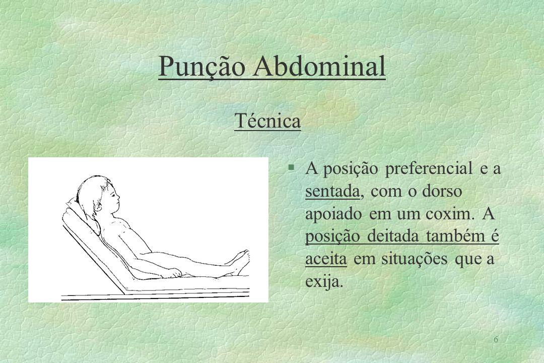 7 Punção Abdominal Técnica §Fazer a anti-sepsia em metade inferior do abdômen.