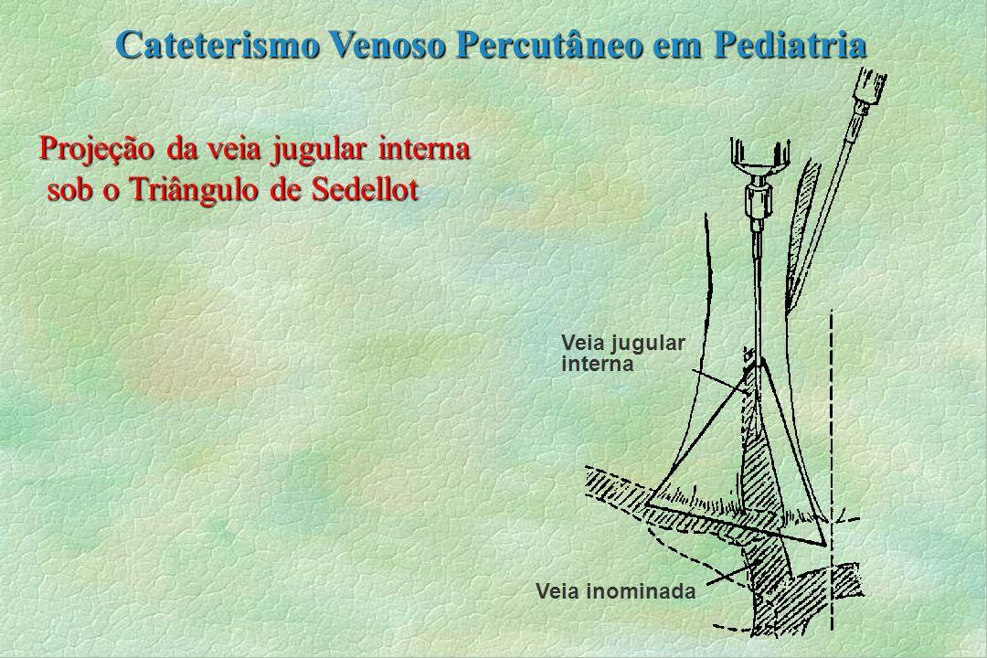 Projeção da veia jugular interna sob o Triângulo de Sedellot sob o Triângulo de Sedellot Veia jugular interna Veia inominada Cateterismo Venoso Percut