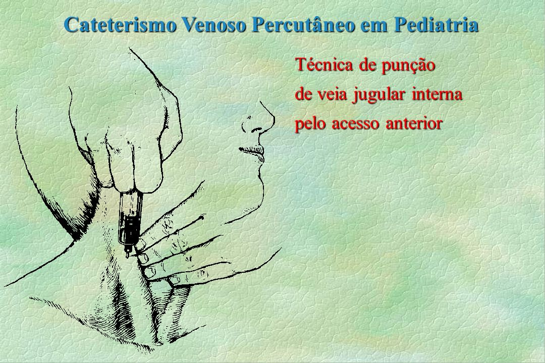 Técnica de punção de veia jugular interna pelo acesso anterior Cateterismo Venoso Percutâneo em Pediatria
