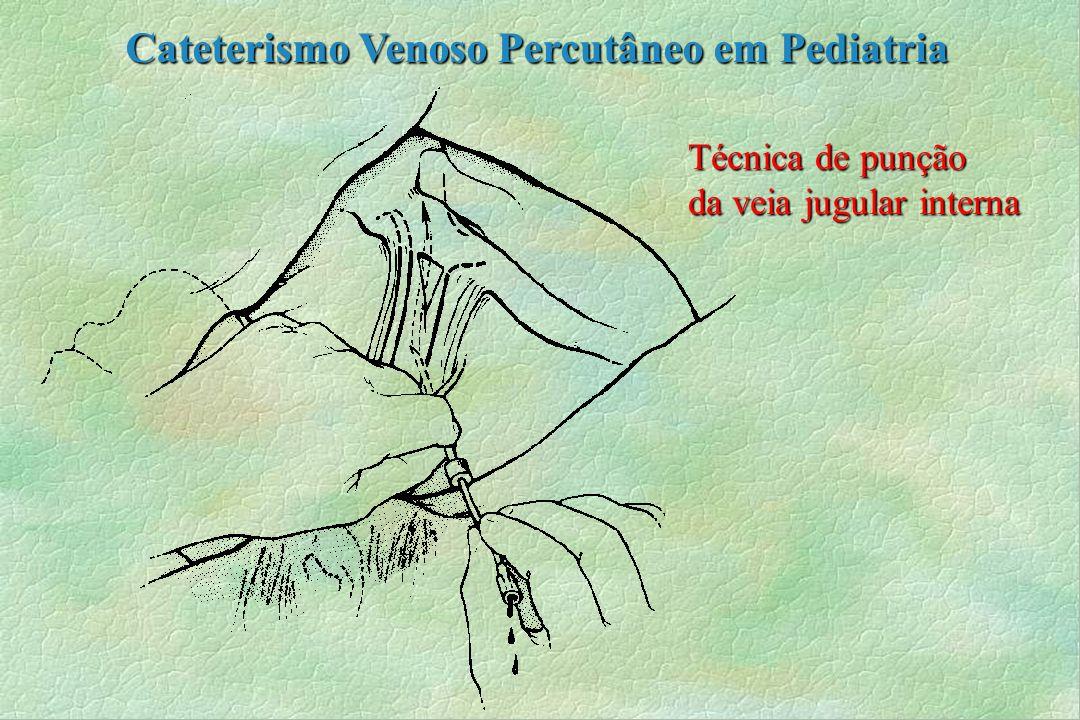 Técnica de punção da veia jugular interna Cateterismo Venoso Percutâneo em Pediatria