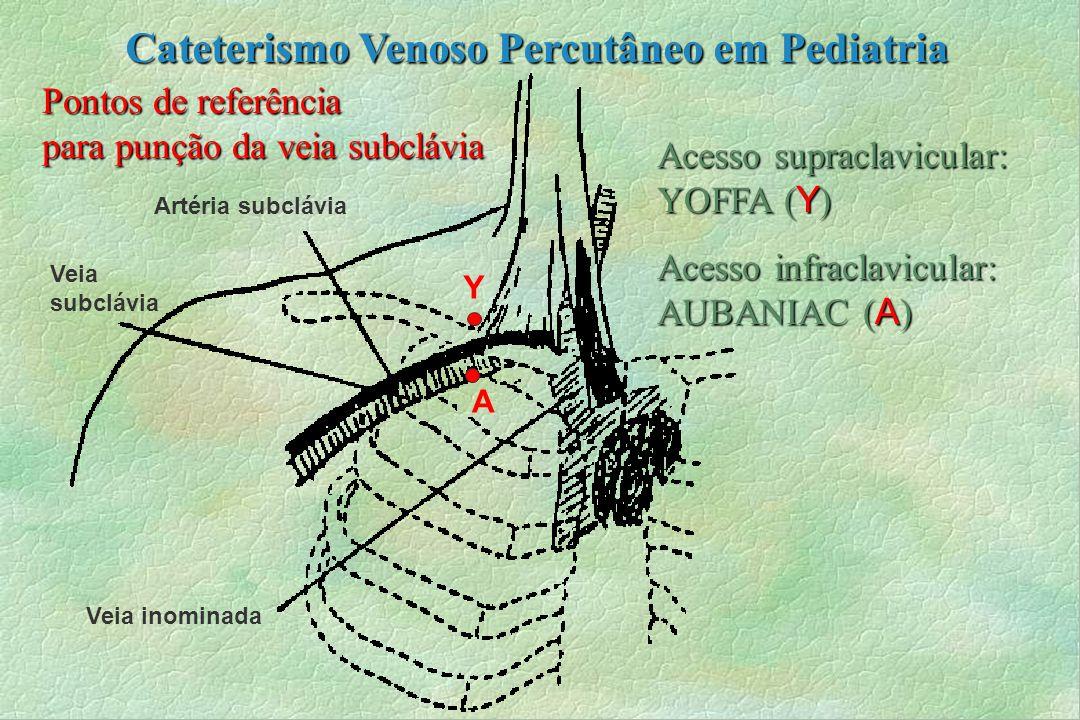 Artéria subclávia Pontos de referência para punção da veia subclávia Veia subclávia Veia inominada Y A Acesso supraclavicular: YOFFA ( Y ) Acesso infr