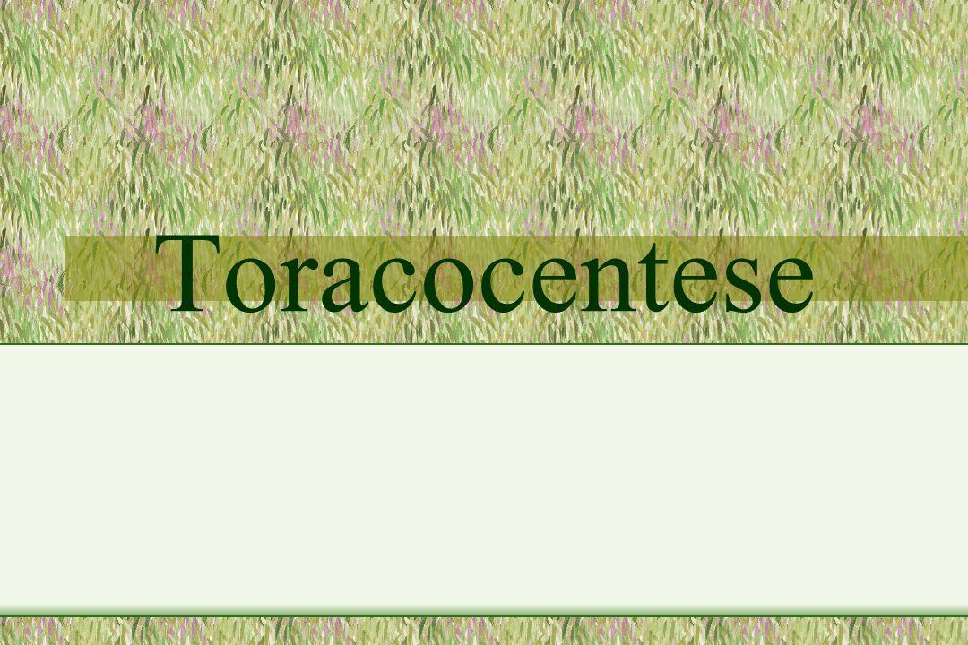 2 Toracocentese Introdução Procedimento de urgência e invasivo utilizado com objetivos diagnóstico e terapêutico.