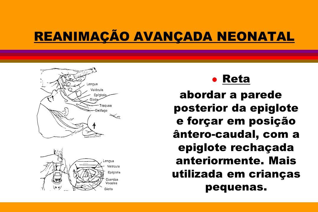 REANIMAÇÃO AVANÇADA NEONATAL l Reta abordar a parede posterior da epiglote e forçar em posição ântero-caudal, com a epiglote rechaçada anteriormente.