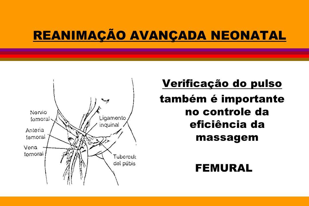 REANIMAÇÃO AVANÇADA NEONATAL Verificação do pulso também é importante no controle da eficiência da massagem FEMURAL