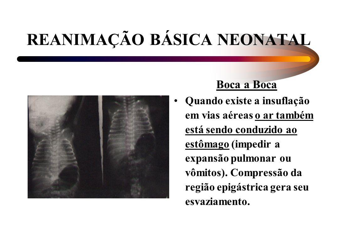 REANIMAÇÃO BÁSICA NEONATAL Boca a Boca Quando existe a insuflação em vias aéreas o ar também está sendo conduzido ao estômago (impedir a expansão pulm