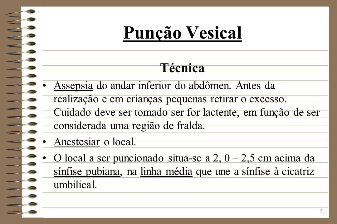 5 Punção Vesical Técnica Assepsia do andar inferior do abdômen. Antes da realização e em crianças pequenas retirar o excesso. Cuidado deve ser tomado
