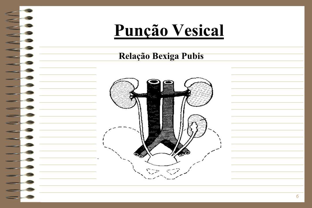 7 Punção Vesical Técnica A forma de introdução é perpendicular a parede abdominal, com um movimento rápido de penetração.