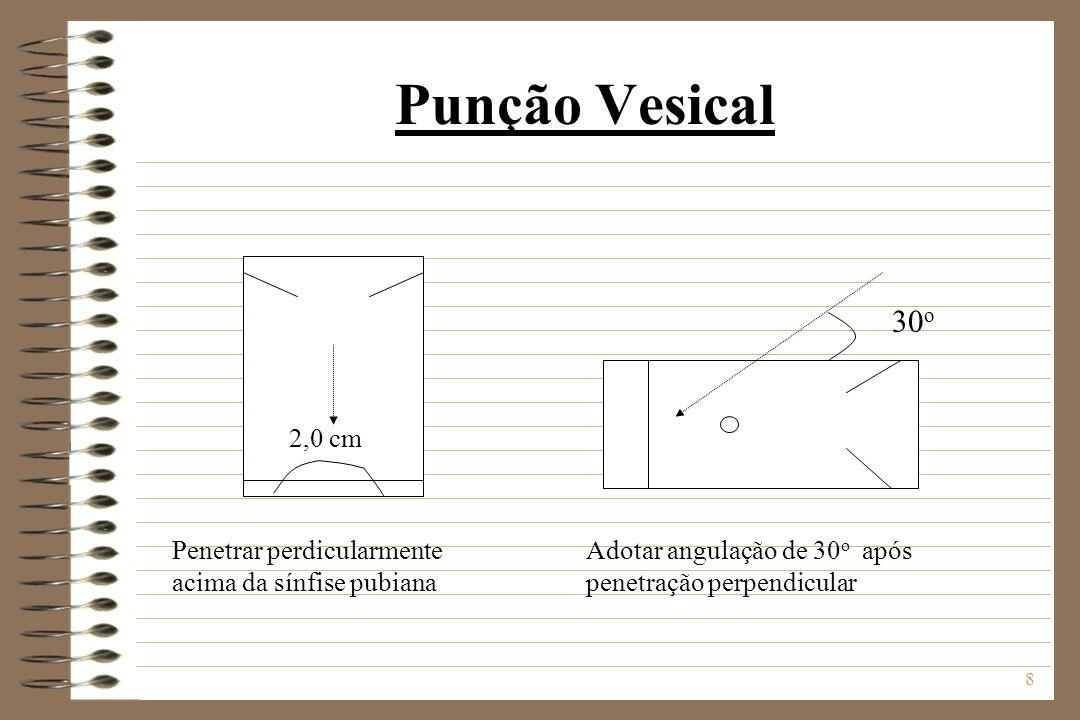8 Punção Vesical 2,0 cm Penetrar perdicularmente acima da sínfise pubiana 30 o Adotar angulação de 30 o após penetração perpendicular