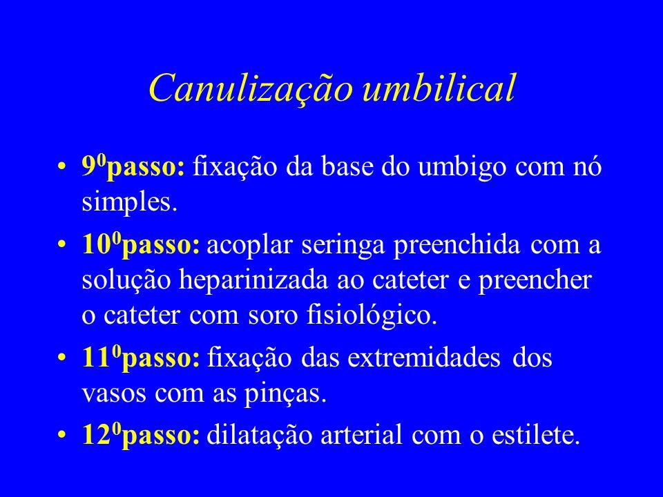 Canulização umbilical 9 0 passo: fixação da base do umbigo com nó simples. 10 0 passo: acoplar seringa preenchida com a solução heparinizada ao catete