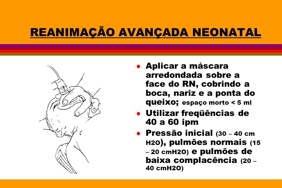 REANIMAÇÃO AVANÇADA NEONATAL l Aplicar a máscara arredondada sobre a face do RN, cobrindo a boca, nariz e a ponta do queixo; espaço morto < 5 ml l Uti
