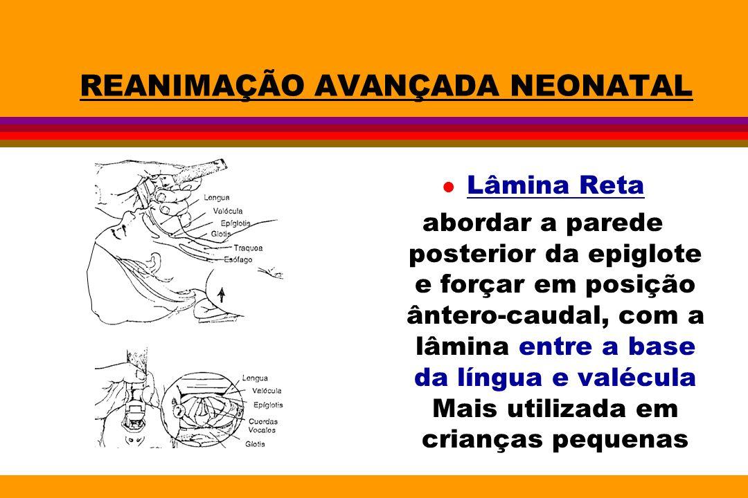 REANIMAÇÃO AVANÇADA NEONATAL l Lâmina Reta abordar a parede posterior da epiglote e forçar em posição ântero-caudal, com a lâmina entre a base da líng