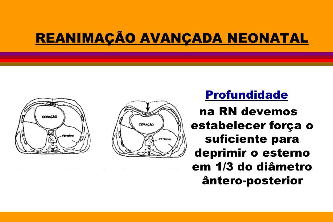 REANIMAÇÃO AVANÇADA NEONATAL Profundidade na RN devemos estabelecer força o suficiente para deprimir o esterno em 1/3 do diâmetro ântero-posterior