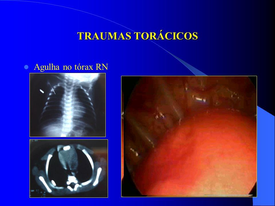 TRAUMAS TORÁCICOS PERÍODO NEONATAL FERIDA PENETRANTE COM SOLUÇÃO DE CONTINUIDADE TRAUMAS FECHADOS