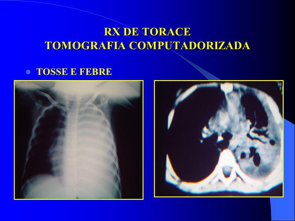 RX DE TORACE ULTRASONOGRAFIA BACTEREMIA PÓS PIODERMITE