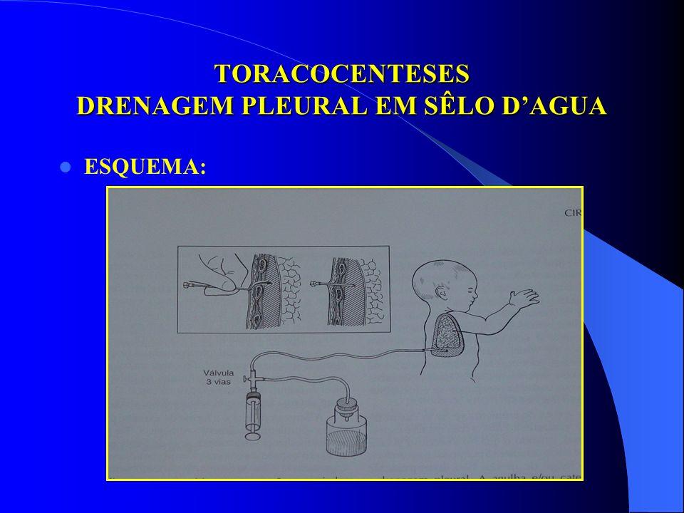 TRATAMENTO CIRÚRGICO EMPIEMA PLEURAL TORACOCENTESES DRENAGEM COM TUBO PLEURAL EM SÊLO DAGUA TERAPIA FIBRINOLÍTICA TORACOTOMIA COM RESSECÇÃO COSTAL MIN