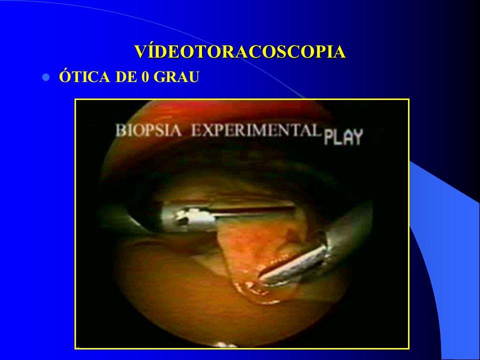 COMO EU TRATO PNEUMONIA E EMPIEMA COMPLICADO CIRURGIA PEDIÁTRICA - HSE Até 1990 - Toracotomia com ressecção costal De 1990 até 1998 - Mini toracotomia