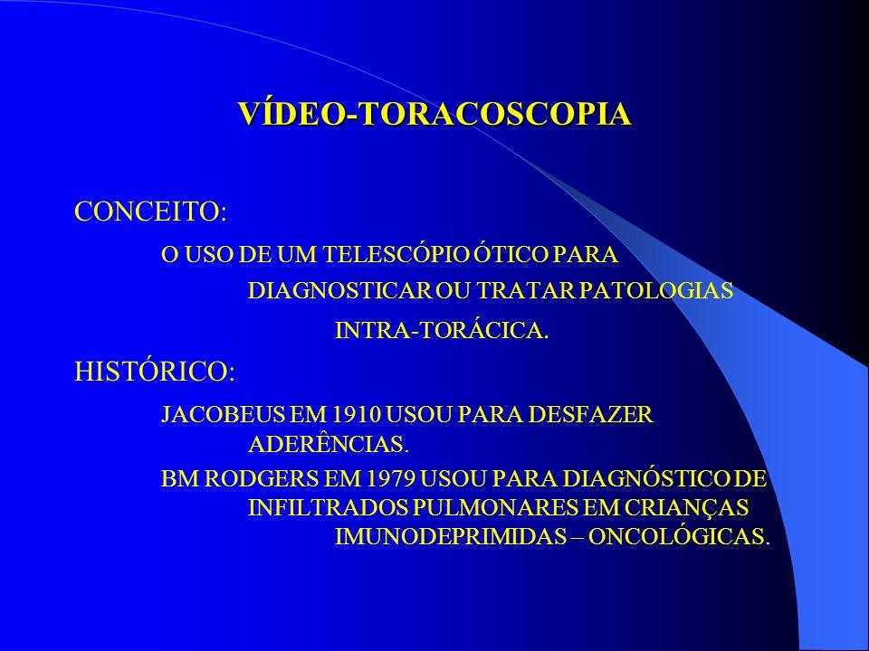 V CURSO DE RECICLAGEM EM PEDIATRIA DA U.F.F. URGÊNCIAS EM PNEUMOLOGIA: SITUAÇÕES QUE NECESSITAM DE INTERVENÇÃO CIRÚRGICA VÍDEOTORACOSCOPIA NA CRIANÇA
