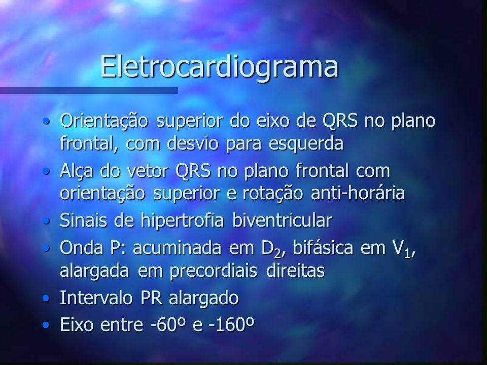 Eletrocardiograma Orientação superior do eixo de QRS no plano frontal, com desvio para esquerdaOrientação superior do eixo de QRS no plano frontal, co