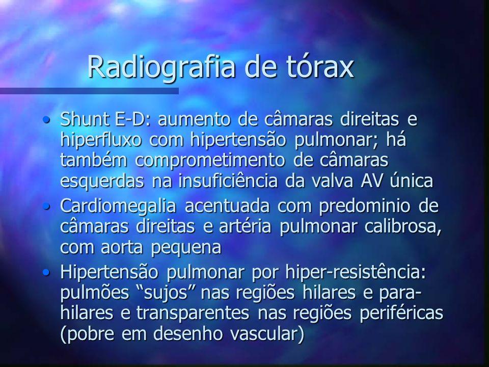Radiografia de tórax Shunt E-D: aumento de câmaras direitas e hiperfluxo com hipertensão pulmonar; há também comprometimento de câmaras esquerdas na i