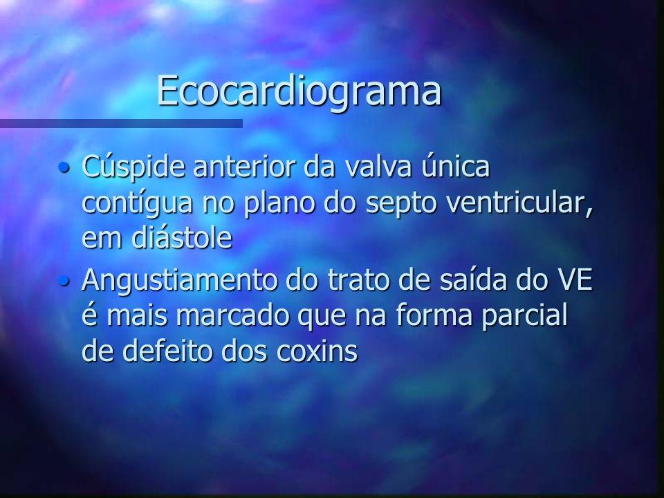 Ecocardiograma Cúspide anterior da valva única contígua no plano do septo ventricular, em diástoleCúspide anterior da valva única contígua no plano do