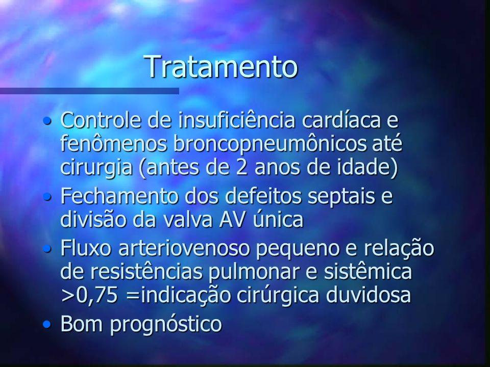 Tratamento Controle de insuficiência cardíaca e fenômenos broncopneumônicos até cirurgia (antes de 2 anos de idade)Controle de insuficiência cardíaca