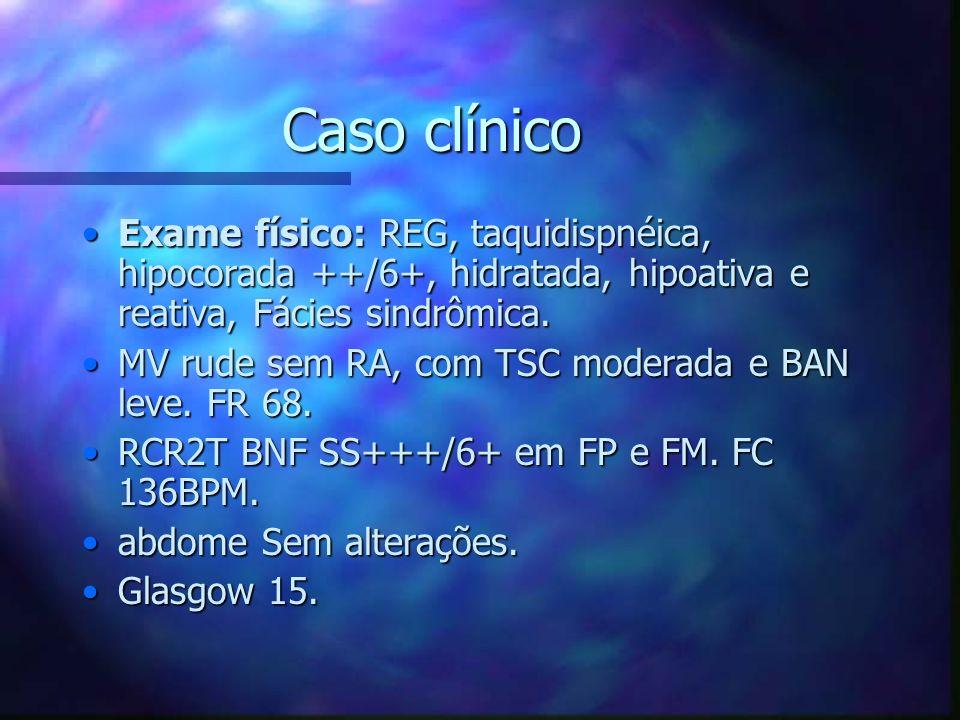 Caso clínico Exame físico: REG, taquidispnéica, hipocorada ++/6+, hidratada, hipoativa e reativa, Fácies sindrômica.Exame físico: REG, taquidispnéica,
