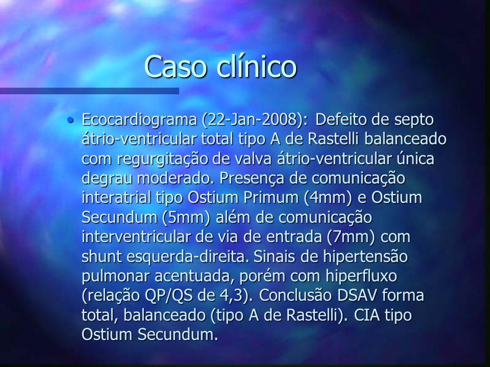 Caso clínico Ecocardiograma (22-Jan-2008): Defeito de septo átrio-ventricular total tipo A de Rastelli balanceado com regurgitação de valva átrio-vent