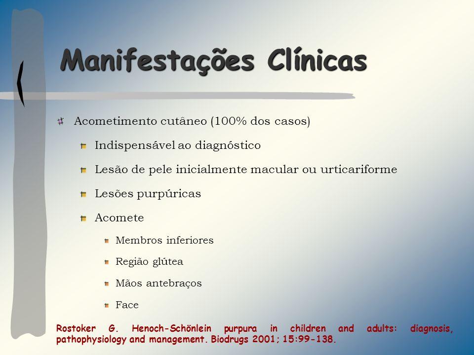 Manifestações Clínicas Acometimento cutâneo (100% dos casos) Indispensável ao diagnóstico Lesão de pele inicialmente macular ou urticariforme Lesões p