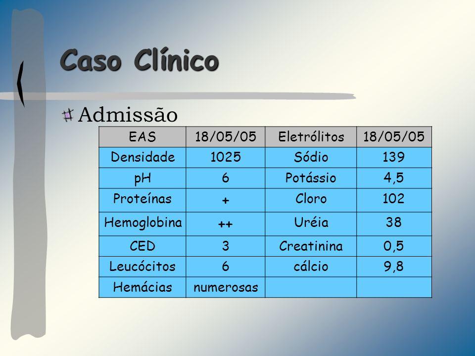 Caso Clínico Admissão EAS18/05/05Eletrólitos18/05/05 Densidade1025Sódio139 pH6Potássio4,5 Proteínas + Cloro102 Hemoglobina ++ Uréia38 CED3Creatinina0,
