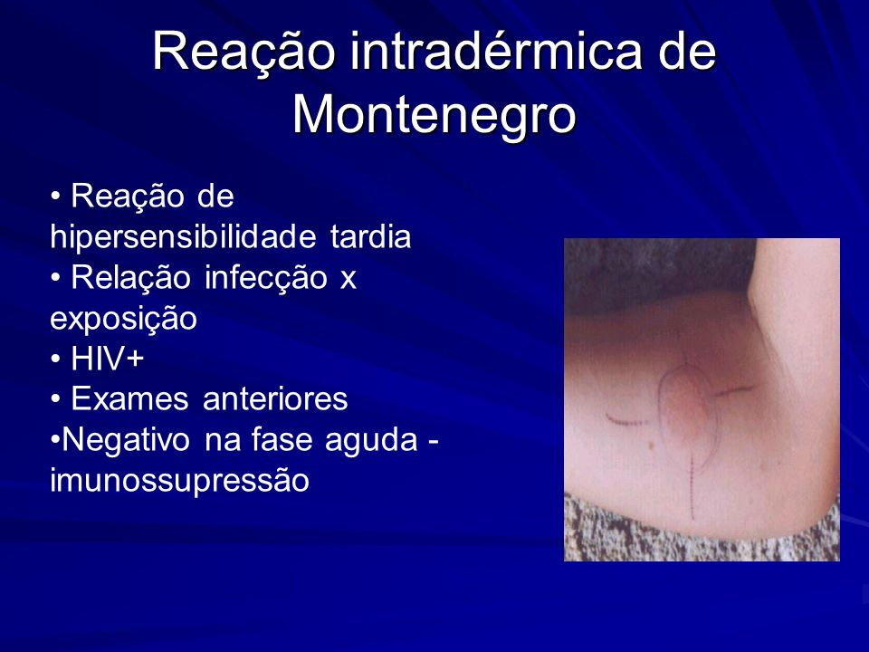 Reação intradérmica de Montenegro Reação de hipersensibilidade tardia Relação infecção x exposição HIV+ Exames anteriores Negativo na fase aguda - imunossupressão