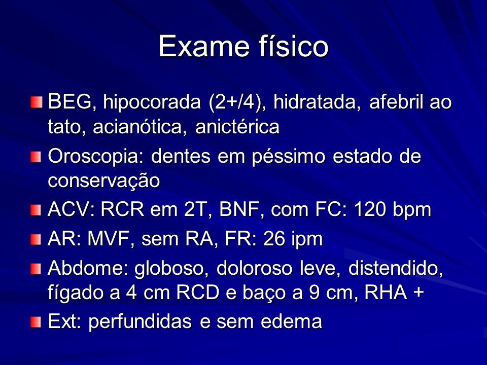 Exame físico B EG, hipocorada (2+/4), hidratada, afebril ao tato, acianótica, anictérica Oroscopia: dentes em péssimo estado de conservação ACV: RCR em 2T, BNF, com FC: 120 bpm AR: MVF, sem RA, FR: 26 ipm Abdome: globoso, doloroso leve, distendido, fígado a 4 cm RCD e baço a 9 cm, RHA + Ext: perfundidas e sem edema