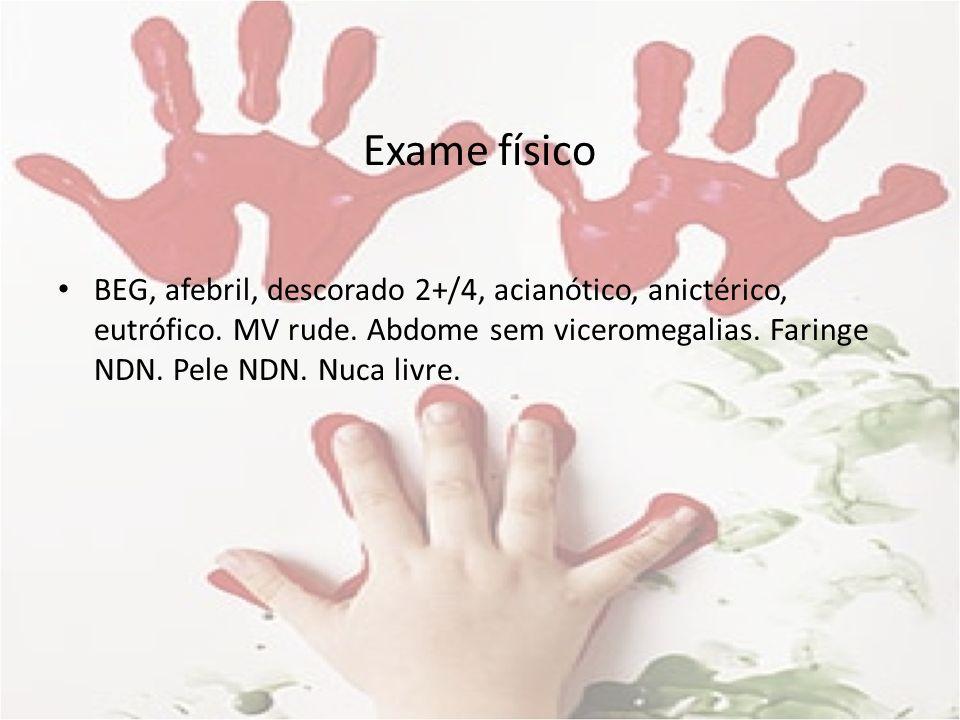 Exame físico BEG, afebril, descorado 2+/4, acianótico, anictérico, eutrófico. MV rude. Abdome sem viceromegalias. Faringe NDN. Pele NDN. Nuca livre.