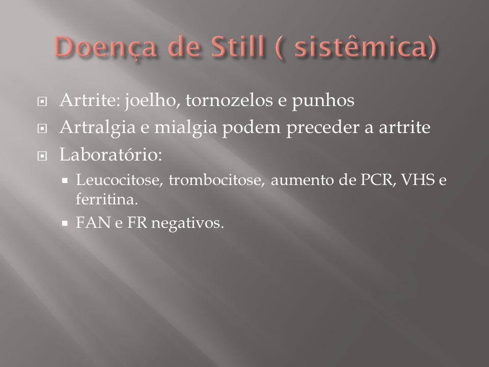 Tratamento: AINES ( com ou sem Metotrexate e neutralizadores de TNF alfa)