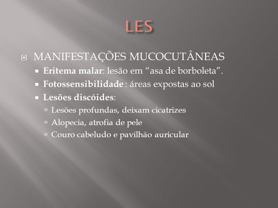 MANIFESTAÇÕES MUCOCUTÂNEAS Eritema malar : lesão em asa de borboleta. Fotossensibilidade : áreas expostas ao sol Lesões discóides : Lesões profundas,