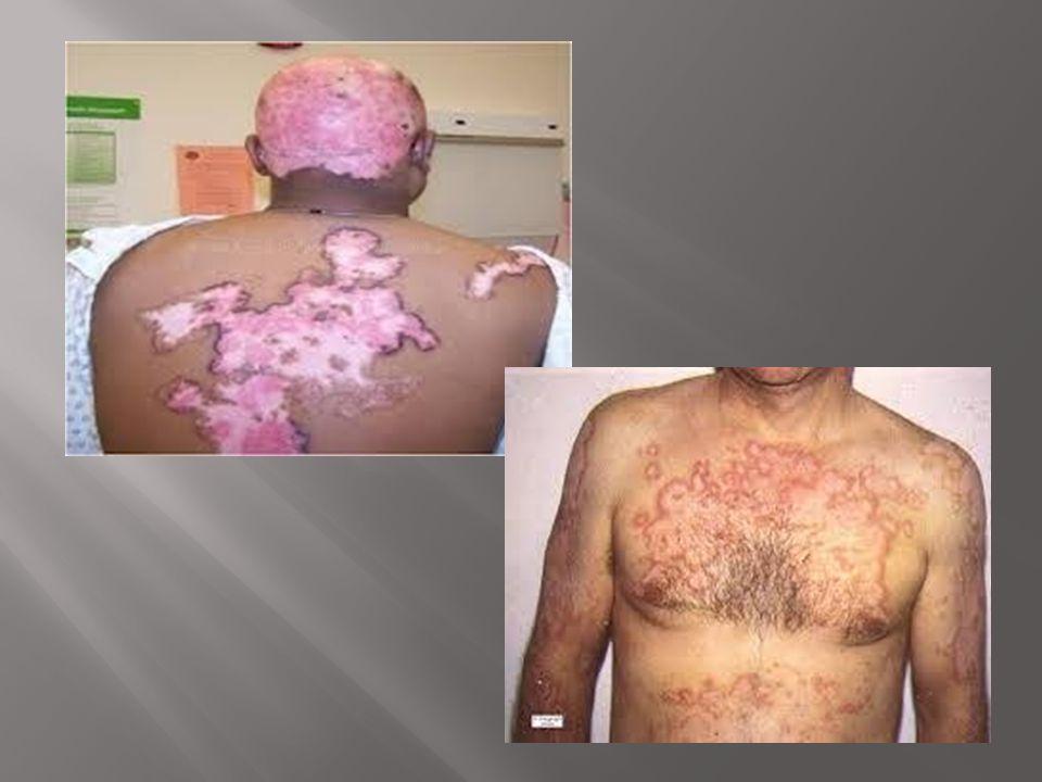 Lúpus cutâneo subagudo: lesões eritematodescamativas mais em membros superiores e tronco Lesões mucosas: úlceras orais e nasofaríngeas.
