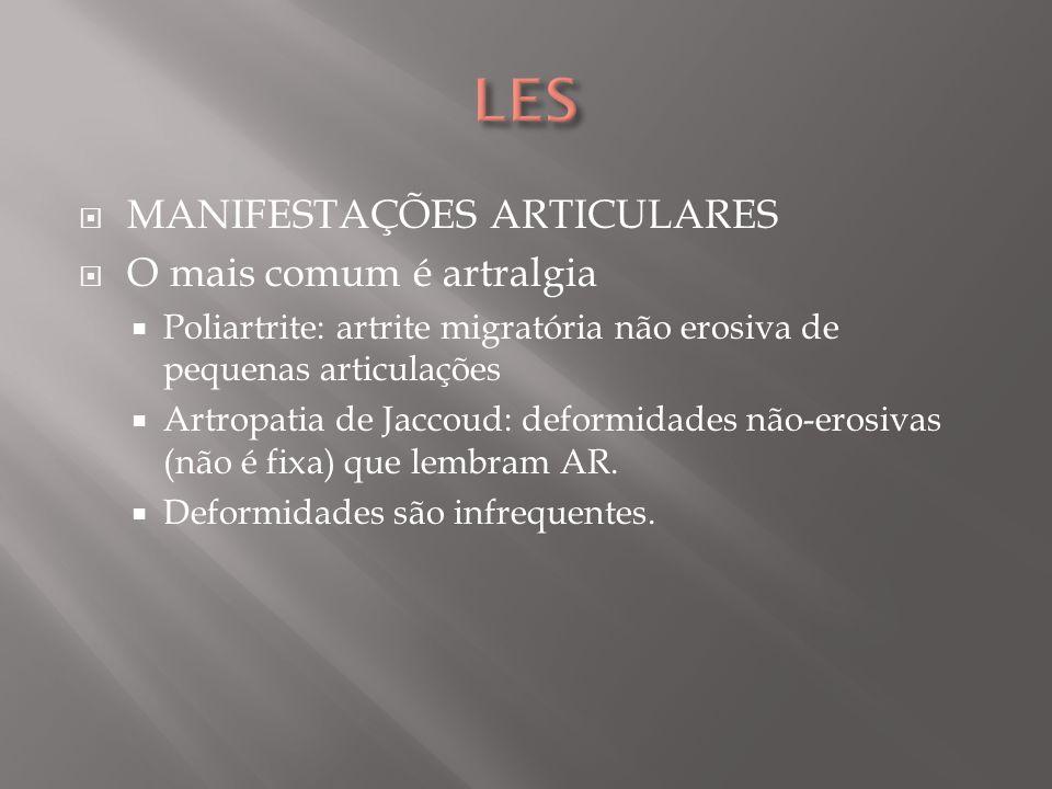 Osteonecrose asséptica (fêmur, tíbia, ombros): Oclusão de microvasos que suprem o osso medular.