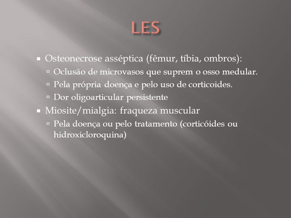 ENDOCARDITE DE LIBMAN-SACKS Não bacteriana Valva mitral Insuficiência mitral ou aórtica (grau leve a moderado) Complicação: Embolia