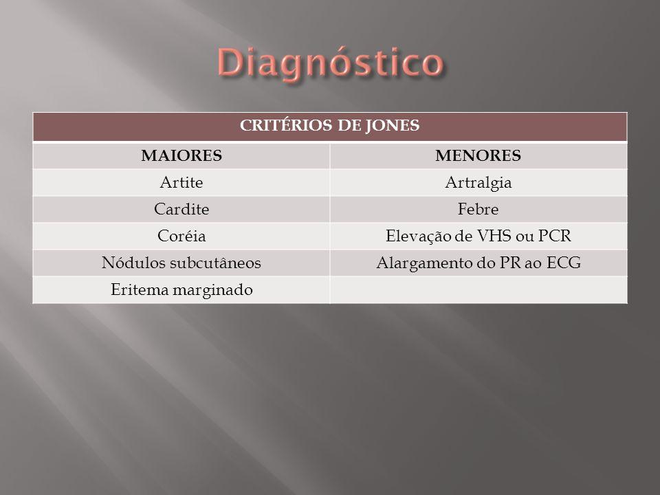 Dois critérios maiores ou um critério maior e dois menores, na presença de evidência de infecção prévia por estreptococo do grupo A.